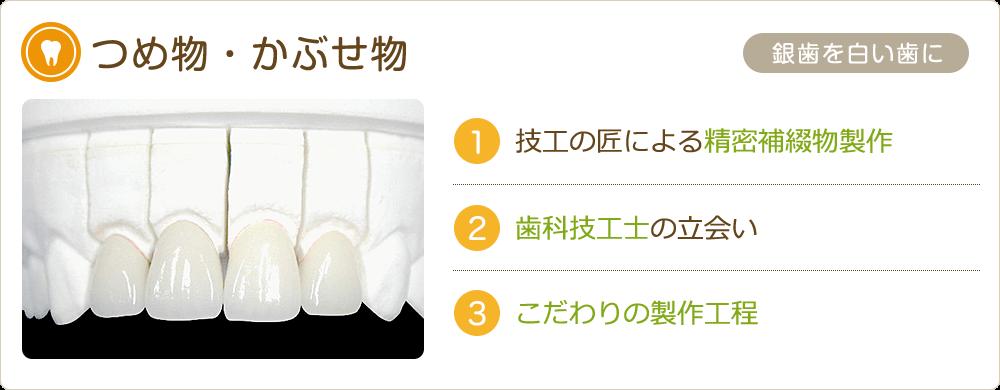 銀歯を白い歯に