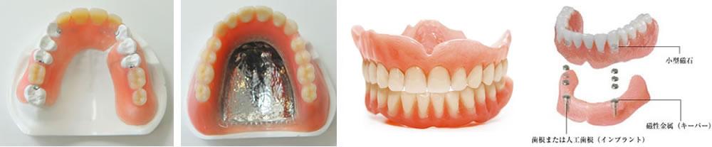 入れ歯の選択肢